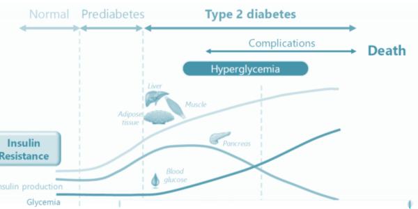 2021 05 Diabetes a silent condition